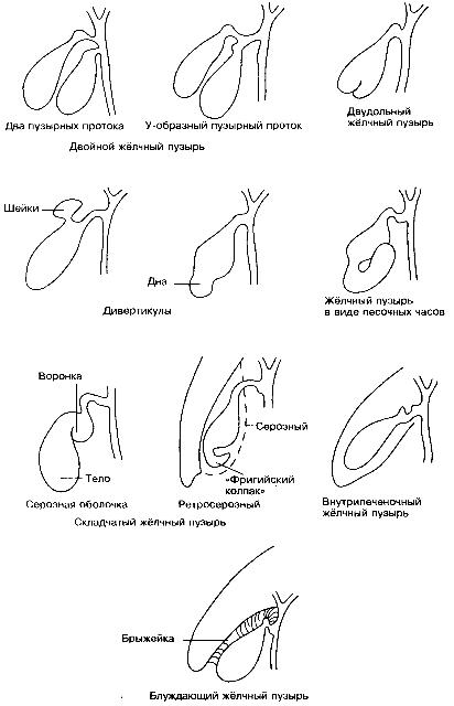 Рис 3 эхограмма желчного пузыря с перегибом и перетяжкой